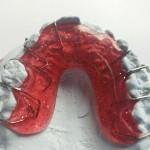 Zahnspange-rot-Bildbeispiel