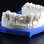Zahnersatz-dank-Keramik-3D-Druck